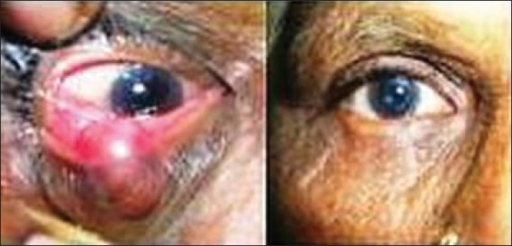 (a) Moderate lower lid defect. (b) Modified Hughes′ procedure, tarsoconjunctival flap from the upper eyelid for the posterior lamella. Skin advancement flap from cheek with Burow's triangle excision