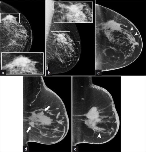 A fifty-eight-year-old woman with mammographical mass in the posterior breast. Diagnostic (a) L CC (b) MLO views with detail of region of interest (inset); CBBCT images in (c) transverse and sagittal (through the d) medial and (e) lateral portions of the lesion, respectively) 3.0-mm sections demonstrate spicules extending from the mass anteriorly (arrowheads, c and e) and additional possible satellite nodules (arrows, d).
