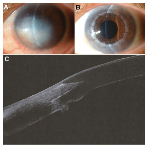 Photographs and Optovue® anterior segment optical coherence tomographic image from patient 5. (A) Preoperative photograph. (B) Postoperative photograph at week 8. (C) One year after femtosecond laser-assisted penetrating keratoplasty, there was a smooth anterior surface and good wound healing and apposition of the interlocking zig-square configuration.