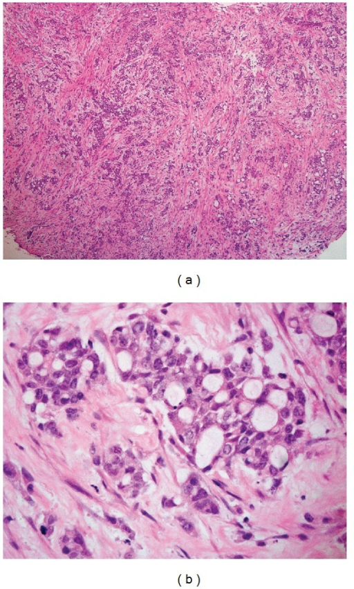 (a) Hematoxylin and eosin (H&E) staining showing reticular, solid, microcystic, adenoid cystic patterns, and desmoplastic stroma. (b) H&E staining showing pleomorphic cells with large vesicular nuclei with variable cytoplasm.