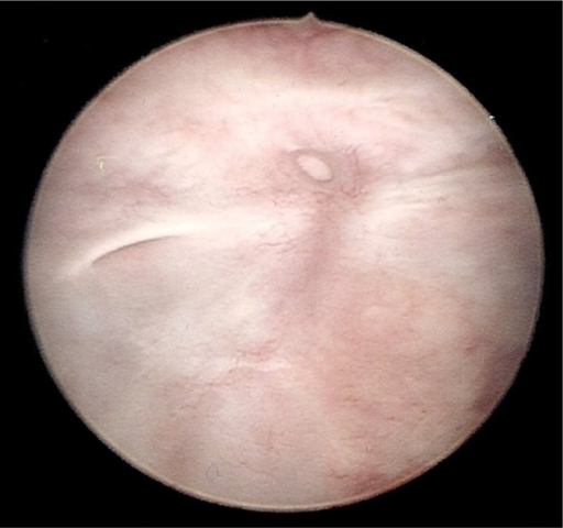 Cystoscopy image showing scarring around the right ureteric orifice and discrete fistula to centre of trigone.