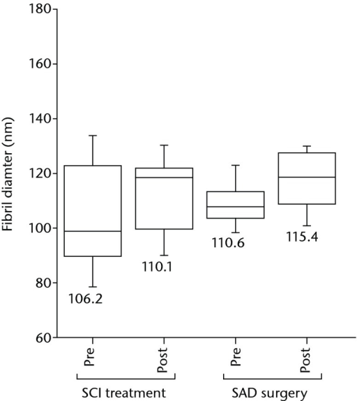 Fibril diameter measurements for partialtear groups before and after subachromial corticosteroid injections(SCI) and subacromial decompression (SAD) treatments. There areno significant changes in fibril diameter post-SCI treatment or post-SADsurgery compared with the pre-treatment measurements (p > 0.05).