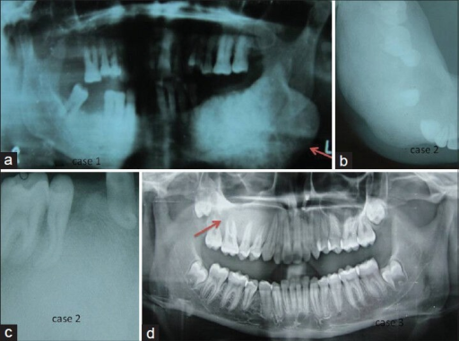 (a) An orthopantomogram of case 1 revealing ground-glass appearance in the left mandible and having a fusiform shape. (b) A mandibular right lateral cross-sectional occlusal radiograph of case 2 showing ground-glass appearance. (c) An intraoral periapical radiograph of case 2 showing ground-glass appearance and dilacerations of the roots. (d) An orthopantomogram of case 3 revealing ground-glass appearance in the right premolar -- molar region