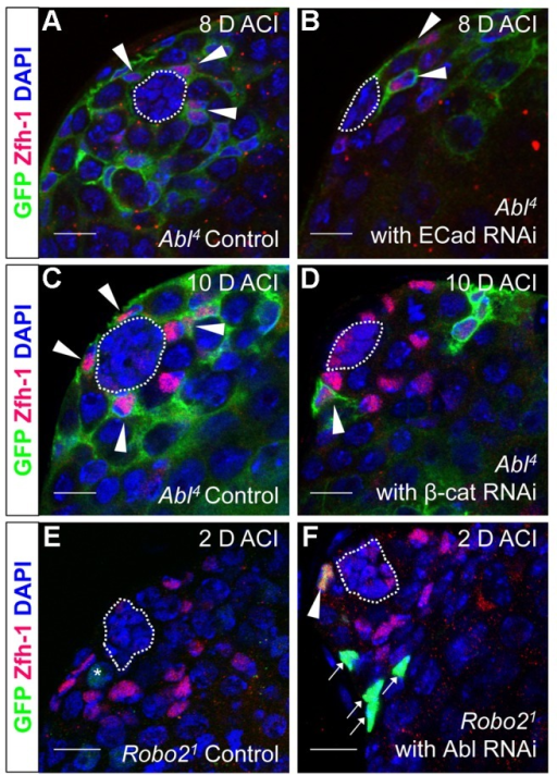 Robo2 and Abl alter cell-cell adhesion to control CySC maintenance.(A–F) Confocal sections of testes with Zfh-1 staining CySCs and early cyst cell daughters (red). Positively marked mosaic clones are identified by presence of GFP (green). At 8 days ACI (A) control Abl4 CySCs (arrowheads) are present at high numbers in each testis, while (B) the number of Abl4 CySCs expressing ECad RNAi (arrowhead) remains low. At 10 days ACI, (C) marked Abl4 CySCs (arrowheads) are present in high numbers per testis, while (D) the number of Abl4 CySCs expressing β-cat RNAi (arrowhead) remains low. At 2 days ACI, (E) robo2  GSCs (asterisk), but not CySCs are present while (F) robo2  CySC expressing Abl RNAi (arrowhead) are present in the niche and produce cyst cell daughter cells (arrows). Hubs outlined in white, DNA stained with DAPI (blue), scale bars = 10 µm.