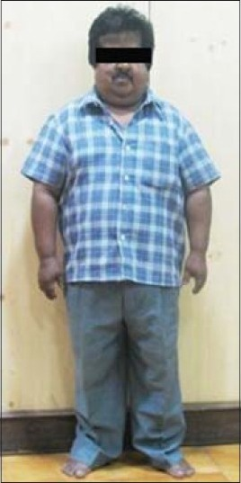 A 47-year-old man, 127 cm in height