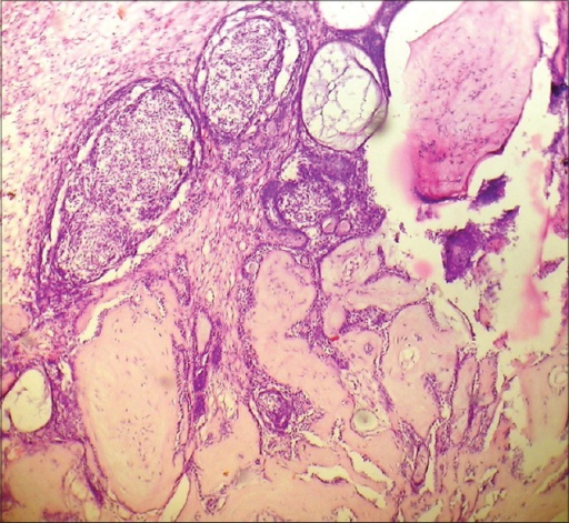 Photomicrograph of H and E stained section (×100) showing glandular elements intermixed with osteoid islands and myxoid areas