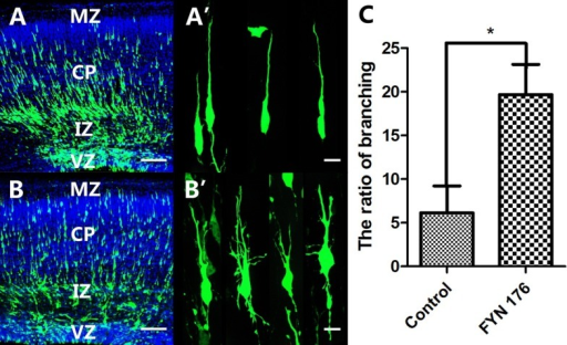 Expression of FynR176A mutant induced the branching of cortical neurons. The brains were transfected with GFP or FynR176A at E15.5 and analyzed at E18.5. (A, A') Normal morphology of migratory neurons in the GFP control group. (B, B') Branching of cortical neurons in the FynR176A group. (C) Ratio of neurons with branches in the FynR176A mutant group compared with the GFP control group. Bars represent means ± standard deviation (*P < 0.05). (A, B) Scale bar = 100 μm, (A' and B') Scale bar = 10 μm.