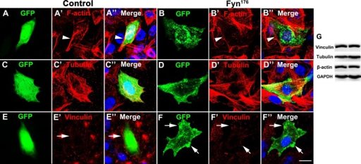 FynR176A induced reorganization of F-actin and focal accumulation of vinculin CHO cells were cultured in F12K medium containing 10% FBS and transfected with GFP or FynR176A . (A, B) CHO cells were stained with phalloidin and DAPI, FynR176A induced the depolymerization of F-actin. (C, D) CHO cells were stained with tubulin; no difference was observed between the GFP group and FynR176A group. (E, F) CHO cells were stained with vinculin, and FynR176A partially colocalized with vinculin and induced focal accumulation of vinculin. (G) Western blotting analysis of vinculin, tubulin, and actin in the GFP group and FynR176A group; no difference was observed between these two groups. Scale bar = 20 μm