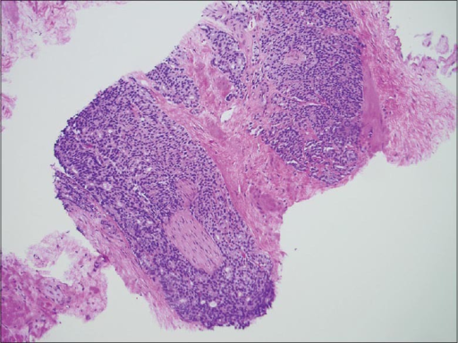 Core biopsy of post-proton beam prostate tissue at ×100 magnification demonstrating high-grade prostate cancer with perineural invasion