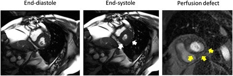 Discordance between left ventricular wall motion abnormalities and perfusion defects indicative of inducible myocardial ischemia. Cine white blood imaging end-diastolic (left panel) and end-systolic (middle panel) frames from slice position acquired in the middle of the left ventricle at peak dobutamine and atropine infusion administered to achieve >80% of the maximum predicted heart rate response for age. The white arrows indicate normal wall motion of the posterior and lateral wall segments. However, in the right panel, a first pass gadolinium enhanced perfusion image also acquired at peak stress is displayed. The yellow arrows indicate a hypoperfused region of the LV myocardium consistent with inducible ischemia. This participant underwent contrast coronary angiography which demonstrated a >70% stenosis of the saphenous vein graft to the right coronary artery.