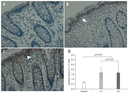 Immunohistochemical staining results for interleukin-17 (IL-17) (×400). Immunohistochemical analysis comparing levels of IL-17 in control (A), lymphocytic colitis (LC) (B), and collagenous colitis (CC) (C). The positive expression of IL-17 is visualized as brown granules deposited in the cytoplasm of the epithelial and inflammatory cells. The arrow indicates intraepithelial lymphocytosis in LC (B). The arrowhead shows the subepithelial collagen layer in CC (C). The graph shows the average quantity score of each group (D). The microscopic colitis group showed an increased quantity score compared with the control group (p=0.001). There were no significant differences between the LC and CC groups (p=0.727) (D).