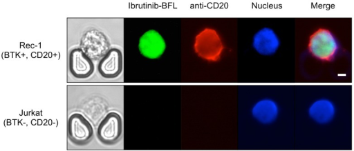 Theranostic on-chip imaging. BTK-positive Rec-1 cells or BTK-negative Jurkat T-cell leukemia cells using fluorescent BTK inhibitor (Ibrutinib-BFL), anti-CD20-APC, and Hoechst stain. Note the high drug uptake and binding in Rec-1 cells. Scale bar: 5 µm.