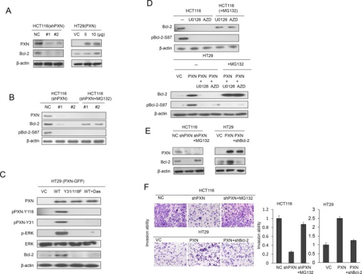 Increased stabilization of Bcl-2 protein by PXN overexpression promotes cell invasion in colorectal cancer cells(A) HCT116 cells were transfected with two different PXN shRNAs. HT29 cells were transfected with two doses of WT PXN and cell lysates were separated by SDS-PAGE to evaluate Bcl-2 and PXN expression by western blotting using specific antibodies. (B) HCT116 cells were transfected with two different PXN shRNAs and then treated with 0 or 5 μmol/L MG132 for an additional 5 hours. Cell lysates were separated by SDS-PAGE to evaluate Bcl-2, pBcl-2-S87, and PXN expression by western blotting using specific antibodies. VC: vector control; NC: non-specific shRNA control. (C) HT29 cells were transfected with WT PXN or mutant PXN-Y31/118F for 36 hours and then treated with 0 or 0.2 μmol/L Src inhibitor (Dasatinib) for an additional 5 hours. The cells lysates were separated by SDS-PAGE to evaluate PXN, pPXN-Y31, pPXN-Y118, ERK, p-ERK, and Bcl-2 expression by western blotting using specific antibodies. (D) HCT116 and PXN-overexpressing HT29 cells were treated with two ERK inhibitors (10 μmol/L U0126 or 5 μmol/L AZD6244, AZD) for 5 hours. These cells were treated with 0 or 5 μmol/L MG132, and then cells were lysed. The cell lysates were separated by SDS-PAGE to evaluate Bcl-2 and pBcl-2-S87 expression by western blotting using specific antibodies. (E) HCT116 cells were transfected with PXN shRNA and then treated with 0 or 5 μmol/L MG132 for an additional 5 hours. HT29 cells were co-transfected with WT PXN and shBcl-2. Cell lysates were separated by SDS-PAGE to evaluate Bcl-2 and PXN expression by western blotting using specific antibodies. (F) Representative numbers of invading HCT116 and HT29 cells transfected with the indicated combinations of WT PXN, shPXN, or shBcl-2. The invasion capability is summarized for the indicated cells.