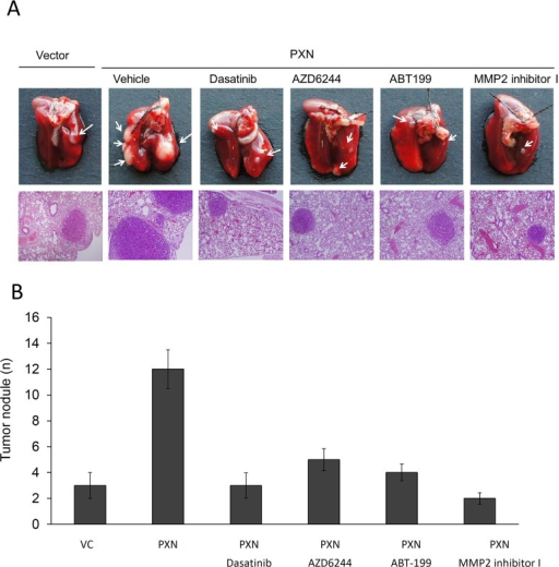 The number of lung metastatic tumor nodules in nude mice injected with PXN-overexpressing HT29 cells is strongly reduced by treatment with a Src inhibitor (Dasatinib), ERK inhibitor (AZD6244), MMP2 inhibitor I, or a Bcl-2 antagonist (ABT-199)(A) Example of lungs of mice showing visible metastases at 6 weeks after tail vein injection with the indicated cells. Representative hematoxylin and eosin staining of metastatic lung tumors from each group of mice. (B) Number of metastatic lung tumor nodules in each group of mice. Data are presented as means ± S.E.Ms.