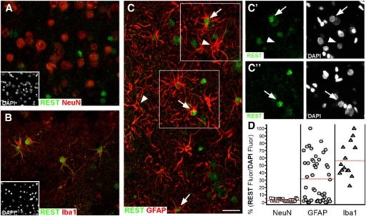 Expression of REST in various cell types in the human brain. Sequential slices were dually immunolabeled with an anti-REST antibody (green) together with antibodies against markers of various cell types (red). The REST immunolabeling is different in the various panels. A, In neurons, no appreciable REST immunolabeling is present. B, In microglia, nuclear REST immunolabeling is strong. C, In astrocytes, nuclear REST immunolabeling is variable. C', C'', Enlargements of the immunolabeling in the boxes in C, confirming the variable REST immunolabeling in the nuclei of astrocytes. D, Quantification of the nuclear REST data illustrated in A–C is shown. Scale bar: (in C) A–C, 30 μm. The figure is from Prada et al., 2011.