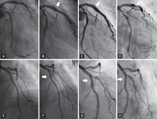 Initial (A, E), serial follow-up coronary angiogram in the anteroposterior caudal (B-D), and left-anterior-oblique (F-H) view. One-year follow-up coronary angiogram (B, F; arrow) revealed multiple aneurysms in all segments of the coronary arteries, which were prominent at the left anterior descending, then regressed at the 2-year follow-up (C, G; arrow) and 3-year follow-up (D, H; arrow).