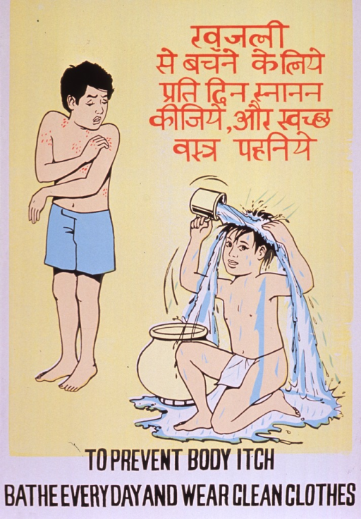 <p>Predominantly yellow poster with brown and black lettering.  Some text in a Devanagari script (Hindi?).  Visual images are illustrations of a boy, who appears to have a rash or infection, scratching his shoulder and a boy kneeling as he pours water over his head to bathe.  Title at bottom of poster.</p>