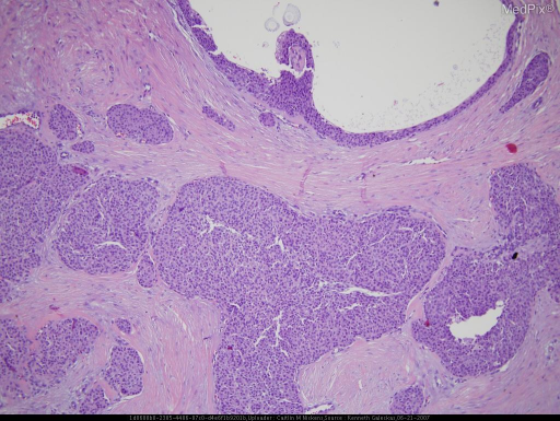 Circumscribed, non-encapsulated dermal tumor of poroid cells with cystic foci.