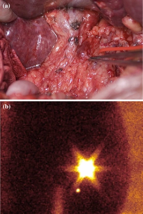 (A) After intraoperative injection of Patent blue dye around liver metastasis in patient 18, the metinel node in the hepatoduodenal ligament is blue. (B) Preoperative percutaneous injection of 4 × 15 MBq Tc-nanokolloid around ovarian cancer groin local recurrence (patient 8) demonstrates a medially and distally situated metinel node after 10 minutes.
