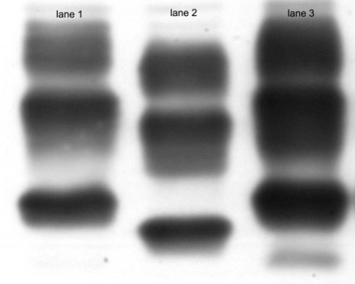 Western blot analysis of PrP after proteinase K digestion (lanes 1–3) using mAb 3F4.Lane1: PrPSc type 1 from a sporadic CJD case. Lane 2: PrPSc type 2 from a sporadic CJD case. Lane 3: Frontal cortex of patient D. As seen in lane 3 there is an additional band migrating at an apparent MW of 17 kDa.