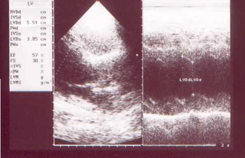 Post treatment 2-D and M-mode echocardiogram exhibiting no fluid accumulation and normal LV function.