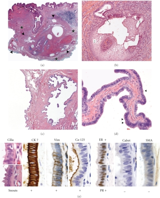 Histologicaland immunohistochemical features of the scrotal serous cystadenoma at the sideof an orchiopexy 14 years earlier. (a)Low magnification shows a tubulocystic tumor (between large arrowheads)surrounded by connective tissue and embedded in the dartos fascia (asterisks). Note its connection to the epidermis by a sinus (1) lined by cornifyingstratified squamous epithelium and opening at the surface (arrow). (b) Detail of metaplastic noncornifyingstratified squamous epithelium (2) passing into a single-layered columnarepithelium of the tubulocystic system (3) in the deepest part of the sinus. (c) Cystic papillary component. (d) Detail of a fibrous papilla coveredby characteristic tall columnar epithelium with ciliated cells (smallarrowheads). (e) Cytological and immunohistochemical characteristics discriminatingthe tumor from other scrotal and intrascrotal lesions. Vim: Vimentin; ER: Estrogen receptor; PR: Progesterone receptor; Calret: Calretinin; SMA: Smooth muscle actin.