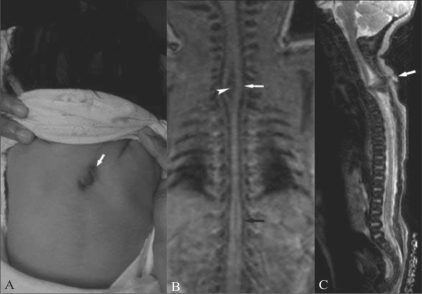 Gross examination of the neonate (A) shows swelling and a tuft of hair (white arrow) in the midline. T1W coronal MRI image (B) of the neonatal spine shows splitting of the spinal cord in the cervicodorsal (white arrow) and lower dorsal (black arrow) regions, with a thick band between the two hemicords (arrowhead). Sagittal T2W HASTE image (C) shows a track (white arrow) extending from the skin surface to the spinal canal.