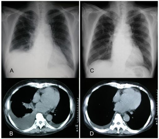 Pleural effusion was significantly alleviated by vincristine, adriamycin and dexamethasone chemotherapy. Chest radiograph (A) and computed tomography imaging (B) showing pleural effusion at admission. Chest radiograph (C) and computed tomography imaging (D) showing significant improvement 30 days after VAD.
