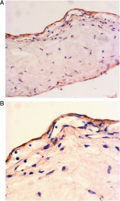 Immunostaining with Hep antibody (brown) in mesothelial (A and B) and endodermal (A) layers of the secondary yolk sac at 10 week. Nuclei are stained blue (A ×25; B ×75).