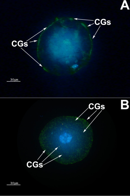 Cytoplasmic Maturation. (A) Complete cytoplasmic maturation: CGs are located on the MII oocyte periphery. (B) Incomplete cytoplasmic maturation: CGs are both clustered in the center and on the periphery of the MII oocyte. CGs = cortical granules