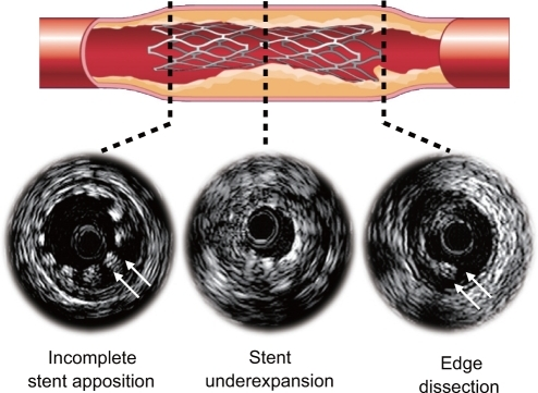 Stent-related complications after stent deployment.
