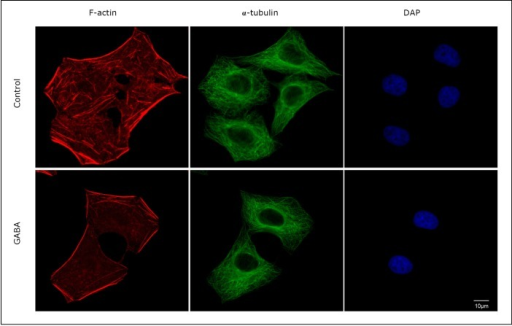 GABA-induced actin cytoskeleton reorganization. SMMC-7721 cells grown on an eight-well CultureSlide were fixed with 3.4% paraformaldehyde in PBS and then immunostained with Alexa Fluor® 594 phalloidin (red), α-tubulin mouse monoclonal antibody (green), and DAPI (blue). Cytoskeletal changes occurred when the cells were stimulated with GABA. Scale bar=10 µm.