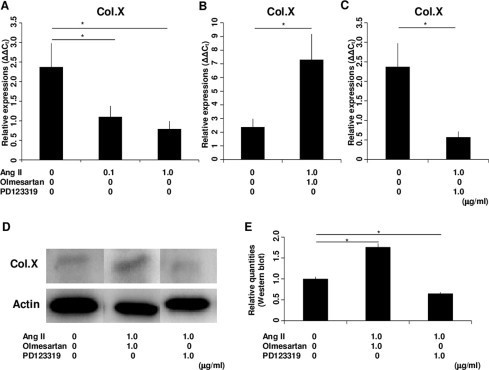 Expression of Col.X in the ATDC5 cell line treated with various agents on Day 14. (A) Ang II downregulated the mRNA expression of Col.X in a concentration-dependent manner. (B) When cells were treated with Olmesartan, Ang II upregulated the mRNA expression of Col.X. (C) When cells were treated with PD123319, Ang II downregulated the mRNA expression of Col.X. (D) Western blot analysis showed that Ang II upregulated the expression of Col.X when cells were treated with Olmesartan and that Ang II downregulated the expression of Col.X when cells were treated with PD123319. (E) Western blotting detection of Col.X showed significant differences between treatments. The molar concentration ratios of antagonists to agonist were 2.32 (1.0 μg/ml Olmesartan/1.0 μg/ml AngII) and 1.77 (1.0 μg/ml PD123319/1.0 μg/ml AngII). *P < 0.05 between treatments. Abbreviations: Col.X, type X collagen; Ang II, angiotensin II.