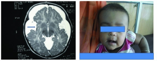 "The child with a large head and his MRI brain revealing wide CSF spaces with temporal lobe hypoplasia, bilateral front parietal subdural effusions and dilatation of the sylvian fissures with open opercula (arrow), and high signal intensity seen in bilateral caudate nuclei, putamen, and deep subcortical white matter. Widening of the sylvian fissure gives the characteristic ""bat-wing"" appearance."