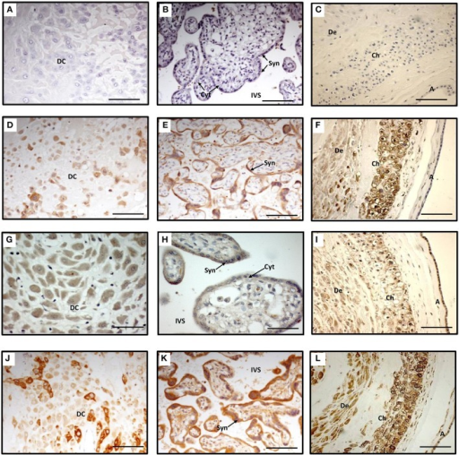 Immunohistochemistry staining of term decidua basalis (A), chorionic villi (B) and fetal membranes (C) with AKR1B1 antibody (D–F), SLCO2A1 antibody (G–I), and PTGS2 antibody (J–L). Primary antibodies were omitted in (A–C) which served as controls. DC, decidual cells; Syn, syncytiotrophoblast; Cyt, cytotrophoblast; IVS, intervillous space; De, decidua parietalis; Ch, chorion; and A, amnion. Bar = 100 μm.