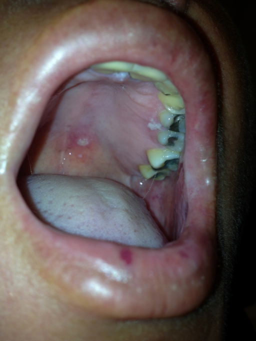Multiple vesicles on the palate.