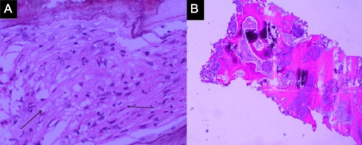 Histology of bone biopsy specimen. (A) High power view of foamy macrophages in the interlamellar spaces (thin arrow), using CD163+ CD68+ CD1a− S100− immunostain; 200× magnification. (B) Low-power view of trabeculae of woven and lamellar bone, 100× magnification.