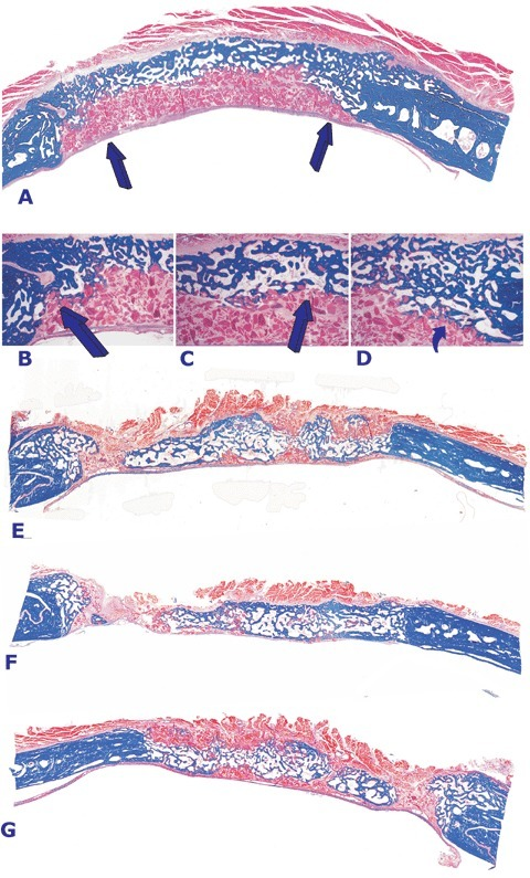 Morphology of calvarial regeneration and induction of bone formation in calvarial defects implanted with doses of the transforming growth factor-β3 (hTGF-β3) osteogenic device without (A) and with minced fragments of autogenous rectus abdominis muscle (E, F and G) harvested 90 days post-implantation. (A) Induction of bone in a calvarial defect implanted with 125 μg of the hTGF-β3 osteogenic device showing bone formation predominantly on the pericranial aspect of the specimen with lack of bone formation at the endocranial dural aspect of the specimen (arrows). Arrows in B, C and D point to the inhibition of bone formation within the fibrogenic collagenous matrix facing the newly formed bone pericranially.(E, F and G). Addition to the hTGF-β3 osteogenic device of autogenous minced fragments of rectus abdominis muscle induces partial restoration of the biological activity of 125 μg of the hTGF-β3 osteogenic device with large islands of newly formed bone in specimens harvested on day 90 after implantation. Undecalcified sections cut at 5 μm stained free-floating with Goldner's trichrome. (A, E, F and G) original magnification ×1.8; (B, C and D) original magnification ×7.