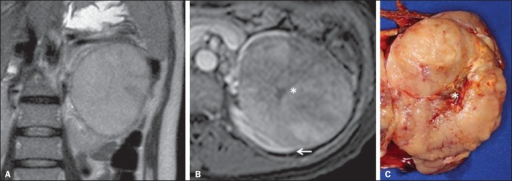 Renal mucinous tubular and spindle cell carcinoma. Female, 57-year-old patientwith hematuria. A: MRI, T2-weighted image showing expansile lesionwith intermediate signal intensity, and (B) contrast-enhancednephrographic phase showing hypovascular lesion – compare with the cortex (arrow).Observe the hyposignal of the scar (asterisk). Despite the large dimensions of thelesion, it is well delimited, with no infiltrating feature. C:Surgical specimen showing a circumscribed, yellowish lesion with central scar(asterisk).