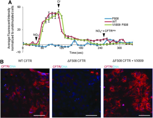 The CFTR-Δf508 mis-folded receptor can be rescued to a functional state using the small molecule VX809. (A) Chloride influx and efflux trace in mature airway epithelial cells expressing the wild-type CFTR (red trace), the ΔF508 mutation in the CFTR (blue trace), or the ΔF508 mutation in the CFTR but treated with the small molecule VX809 (green trace). (B) Confocal microscopy showing expression of CFTR in matured airway epithelium from wild-type cells, cells with the ΔF508 mutation in the CFTR, and cells with the ΔF508 mutation in the CFTR but treated with the small molecule VX809. White bars=100 μM. Addition of Cl− or NO3− indicated with solid arrowheads.