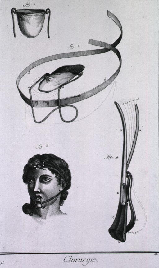 <p>Images include: a device that contains the tongue in a small linen sac is seen in its parts and in use, a bandage for a wounded tongue credited to M. Pibrac, and a lithotome cache.</p>