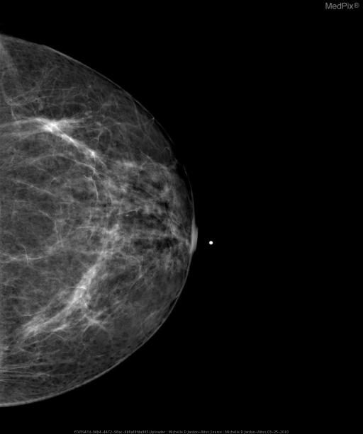 Screening Mammogram of L breast