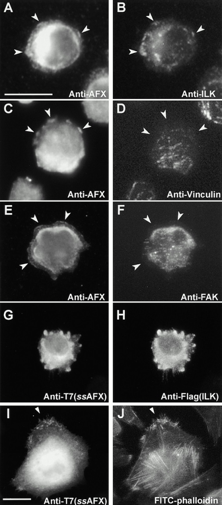 Distribution of affixin during the early stages of the cell spreading process. CHO cells (A, C, and E) or those cotransfected with T7-tagged affixin and Flag-tagged ILK (G and I) were replated on fibronectin-coated coverslips and 1 h later fixed and stained with antiaffixin or anti-T7 antibodies as indicated. Cells were stained simultaneously with anti-ILK (B), antivinculin (D), anti-FAK (F), anti-Flag (H) antibodies, or FITC-phalloidin (J). Note that affixin is concentrated in peripheral blebs (A–F, arrowheads), whereas in well-spread cells dot-like staining is observed from which F-actin bundles emanate (I and J). Fixation is 100% methanol (A–F), 2% paraformaldehyde (G–J). Bars, 25 μm.
