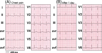 Electrocardiogram showing PQ-segment depression and diffusely elevated ST-T-segments at presentation (A) and evolution after 1 day (B).