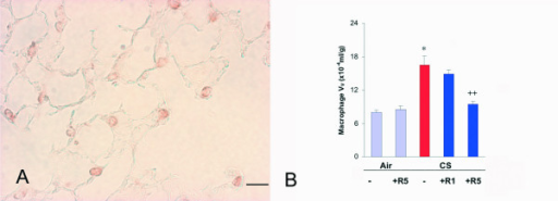 "A. Immunohistochemical reaction for macrophage Mac-3 on lung parenchyma of a C57Bl/6J mouse after a 6 month cigarette smoke exposure. B. Macrophage volume density in the lung of C57BL76J mice exposed either to room air or to cigarette smoke for 6 months and treated or not with roflumilast at 2 doses. Air = air exposure; CS = cigarette smoke exposure; R1 = treated with roflumilast at the dose 1 mg/kg po; R5 = treated with roflumilast at the dose 5 mg/kg po; N = 5 in all groups except ""CS -"" where N = 7, ""CS +R1"" where N = 6 and ""CS +R5"" where N = 7; * = p < 0.01 versus air exposed, ++ = < 0.01 versus smoke exposed. Scale Bar = 40 μm."
