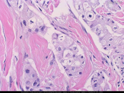 Histopathology: The biopsy shows a carcinoma with cytomorphologic features consistent with the patient's prior bronchoalveolar carcinoma. Immunohistochemistry was strongly positive for TTF-1 and CK7 but negative for CK20; findings compatible with lung carcinoma.
