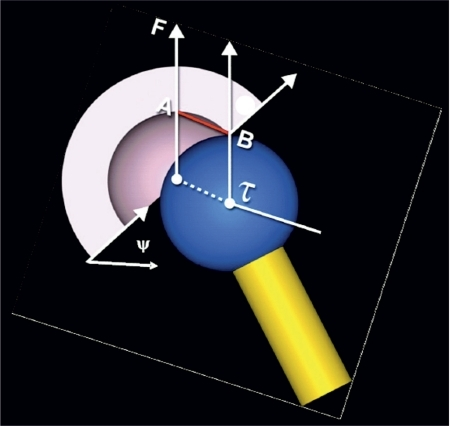 The jumping distance is the lateral translation (AB) of the center of the femoral head (t) before dislocation occurs. F is the load force and y is the planar cup inclination angle measured in the frontal plane.