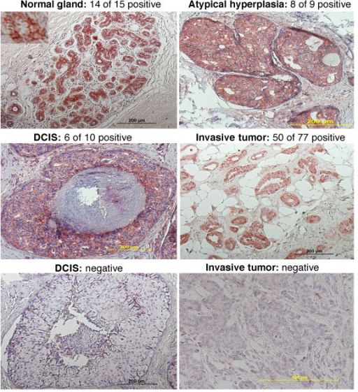 Immunohistochemical analysis of RRIG1 expression. Breast tissue sections were immunostained with the rabbit polyclonal anti-RRIG1 antibody. DCIS, ductal carcinoma in situ.