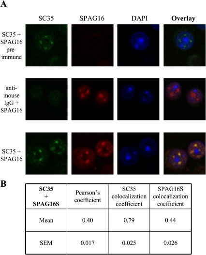 SPAG16S co-localizes with SC35 in nuclear speckles of mouse male germ cells.(A) Mixed male germ cells immunolabeled for SC35 (green) or SPAG16 (red), with DAPI as a nuclear marker. (B) Co-localization analysis of SC35 + SPAG16, n = 43.