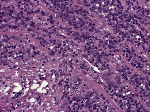 Histologic picture of the resected aortic wall - After formalin-fixation and paraffin embedding a 2 μm transversal full section of the ectatic aortal segment was stained with H&E according to a standard protocol. A dense and focally destructive inflammatory reaction that covered 75% of the wall thickness and predominated the media was observed. Specifically, focal necroses with neutrophilic granulocytes (asteriks, lower left) and bands of lymphocytic infiltrates with occasional multinuclear giant cells (arrow) could be identified. Magn.: 200 ×.